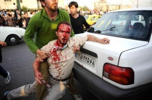 Injured Iranian Protestor/ photo by Faramarz Hashemi